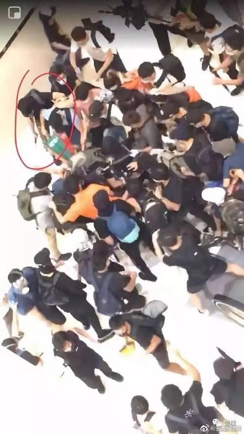 警员手指被暴徒生生咬断!香港以法治乱势在必行