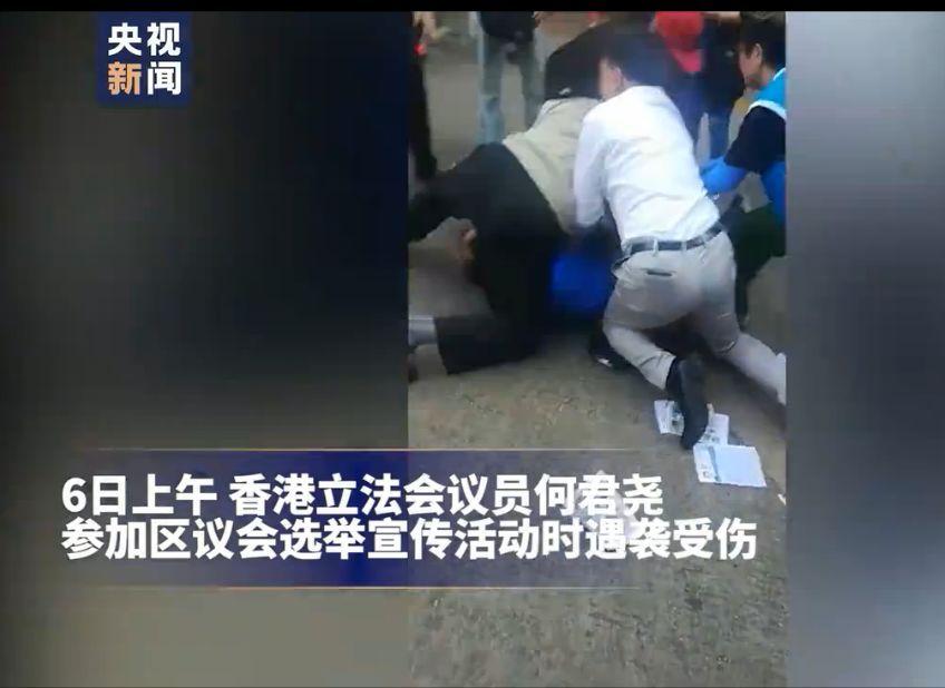 香港立法会议员何君尧遇袭受伤后